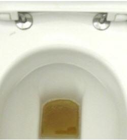 Weiße Klumpen Im Urin