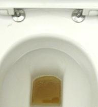 warum stinkt urin nach dem essen von spargel